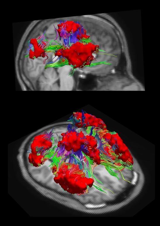 Dos vistas diferentes de la misma region del nuevo atlas, coloreada en rojo.
